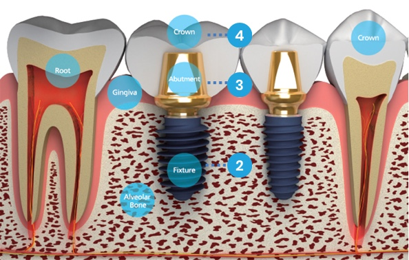 implant megagen Brasov