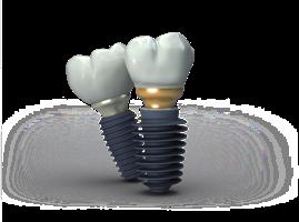 clinica implant megagen brasov